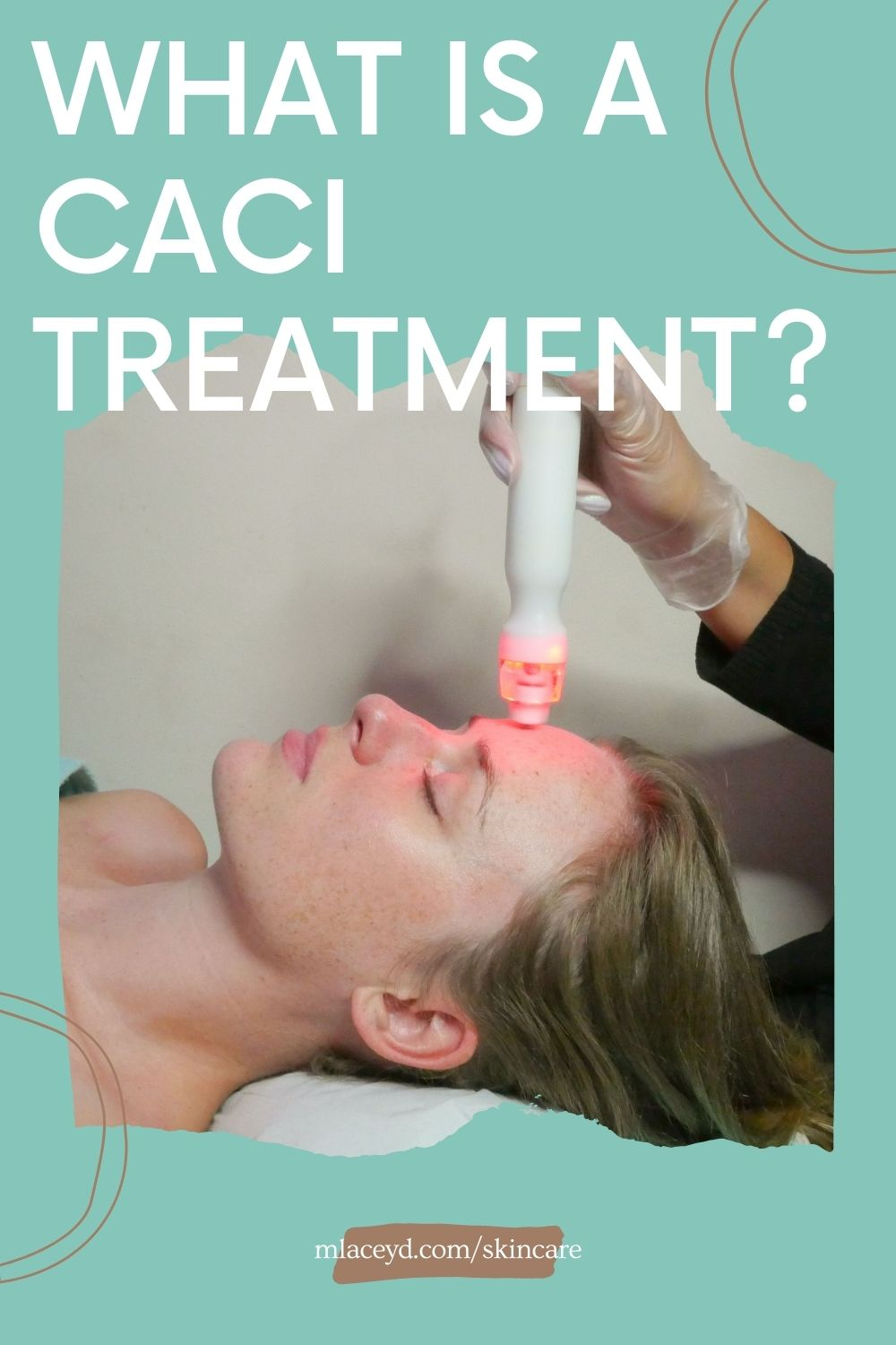 what is a CACI treatment?